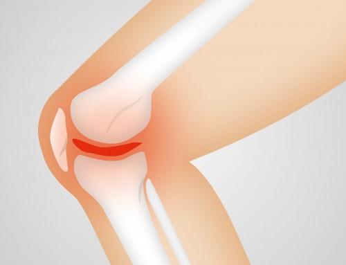 Pijn aan de binnenkant van de knie