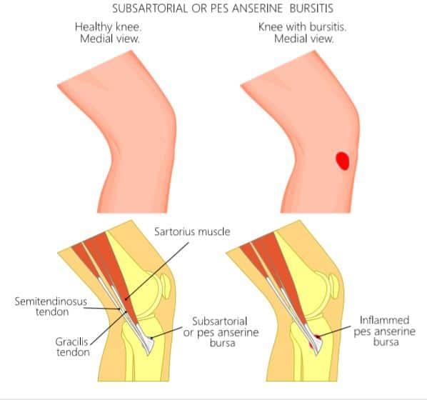 A krónikus prosztatagyulladás tünetei és kezelése, Prosztatagyulladás 19 éves korban
